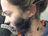 Battery-operated headphones catch fire on plane